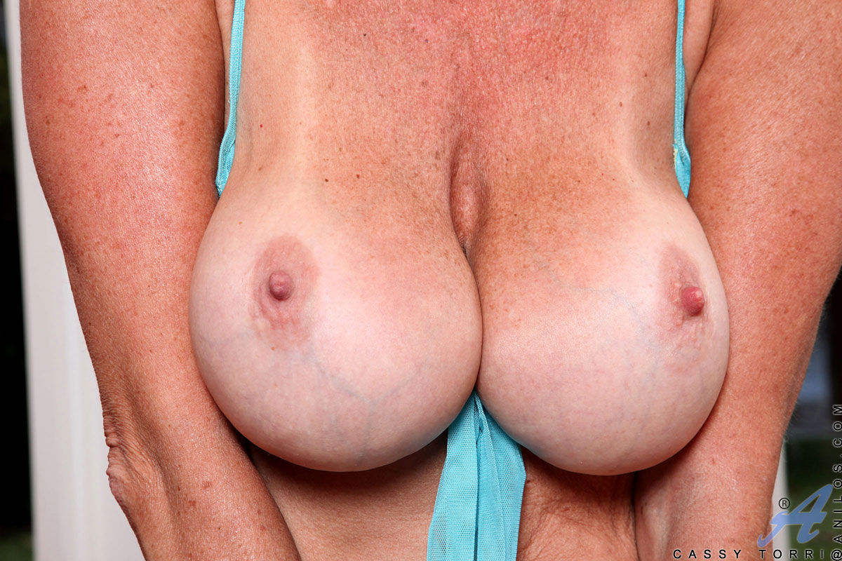 saggy Nude freckled tits mature